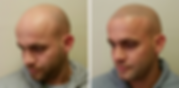 A before and after picture of Scalp Micropigmentation, a solution to hair loss, performed in Nottingham