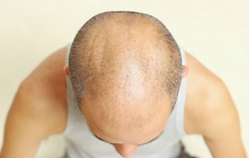 TYPES OF HAIR LOSS. Scalp Micropigmentation Nottingham, hair loss treatment at Your Hair Clinic.