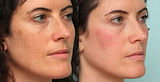 MangoBright-Dermaquest-Resurfacer.jpg