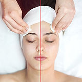 Acne-Dermaquest-Resurfacer.jpg
