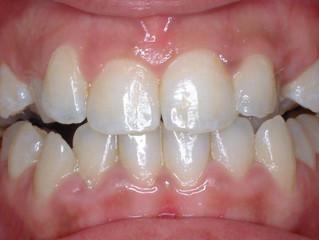 גשר בשיניים - לפני ואחרי