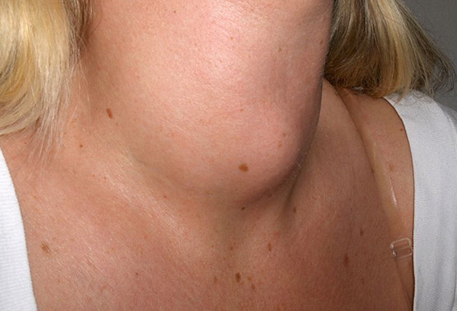 dark spots on neck