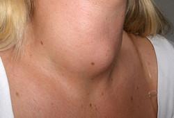 dark spots on neck