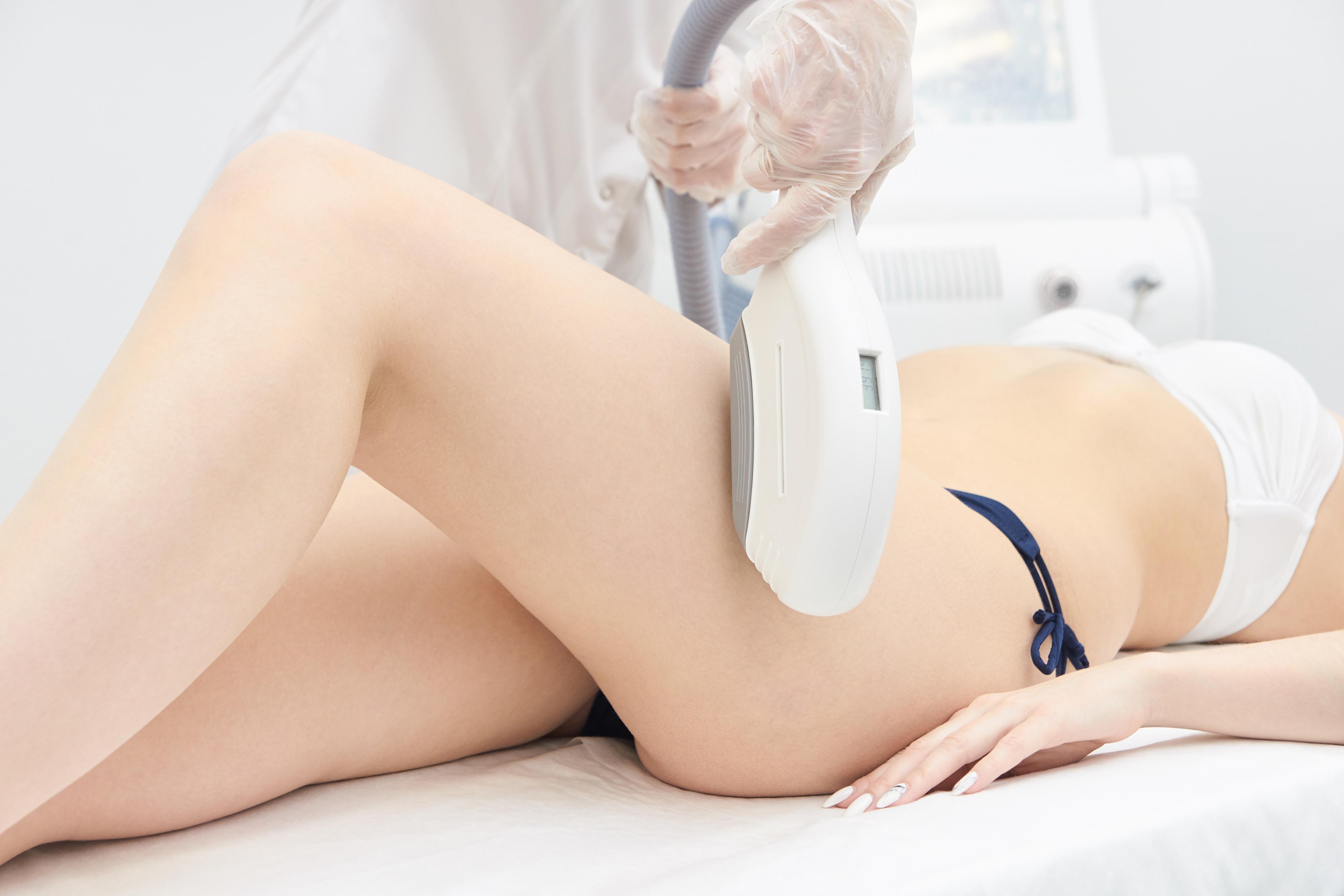 Elos Laser Legs Hair Removal