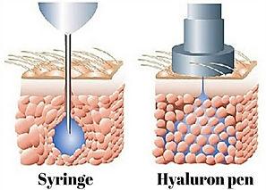 syringe.jpg