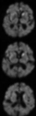 Inkedmri genetic cjd1_LI.jpg