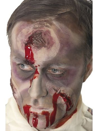 Hole in the Head Wound