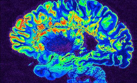 MRI Scan Small.jpg