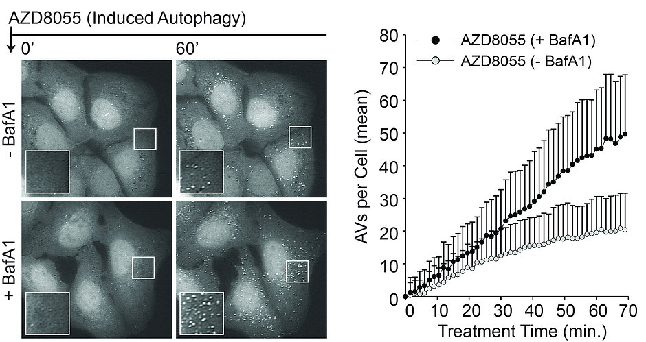 Autophagy in cancer cells and quantification