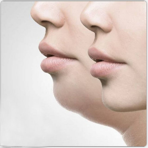 Chin Treatment Package Series