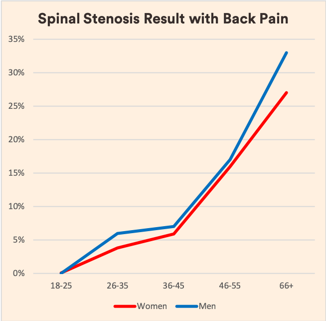 Spinal Stenosis and Back Pain