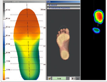 Dynamic and Static computer assessment for podiatry