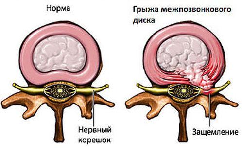 Лечение грыжи позвоночника. Нейрохирург