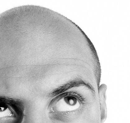 Een haartransplantatie te duur of geen goed resultaat? Micro Haar Pigmentatie is de behandeling.