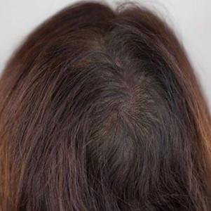micro haar pigmentatie
