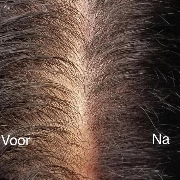 Opvulling dmv micro haar pigmentatie