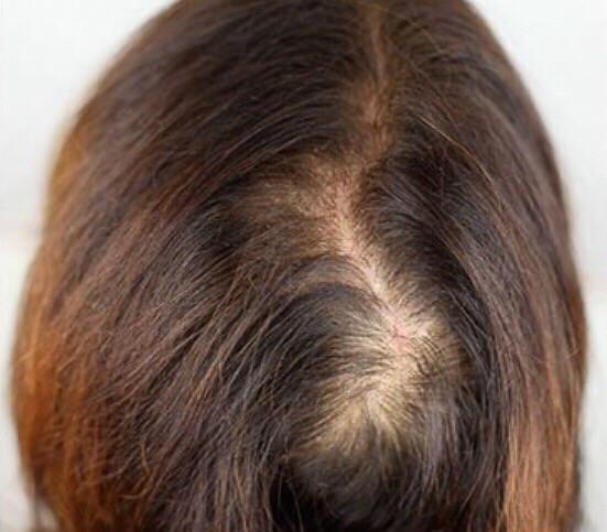 kruin opvullen micro haar pigmentatie