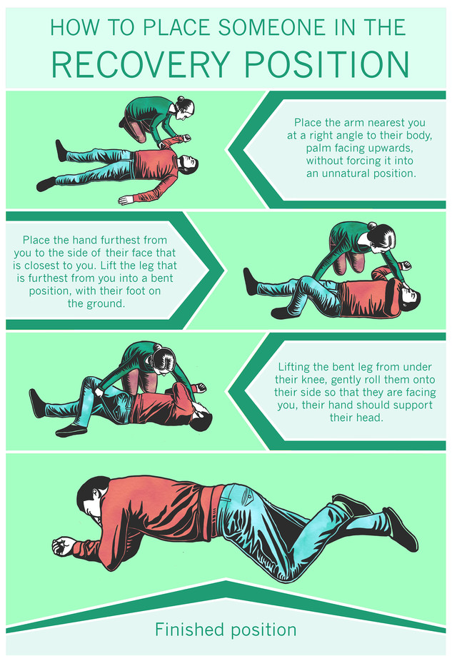 How to place someone in the recovery position