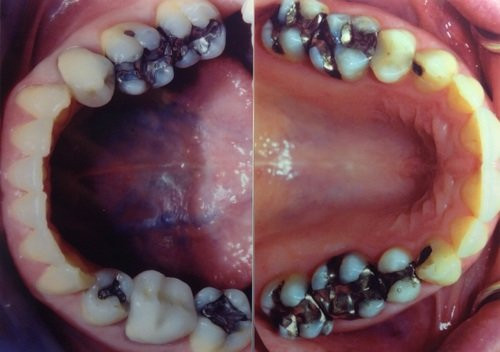 Metal fillings contain mercury!