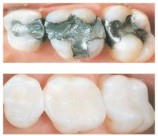 Mercury Detox - amalgam vs. composite fillings