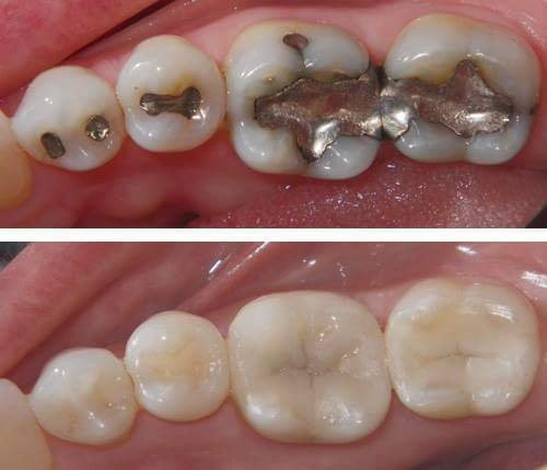 Mercury amalgam silver fillings