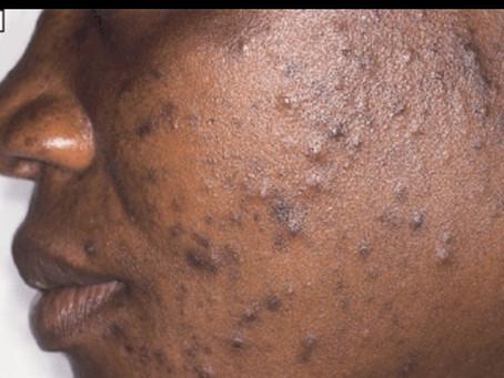 Got Dark Spots?