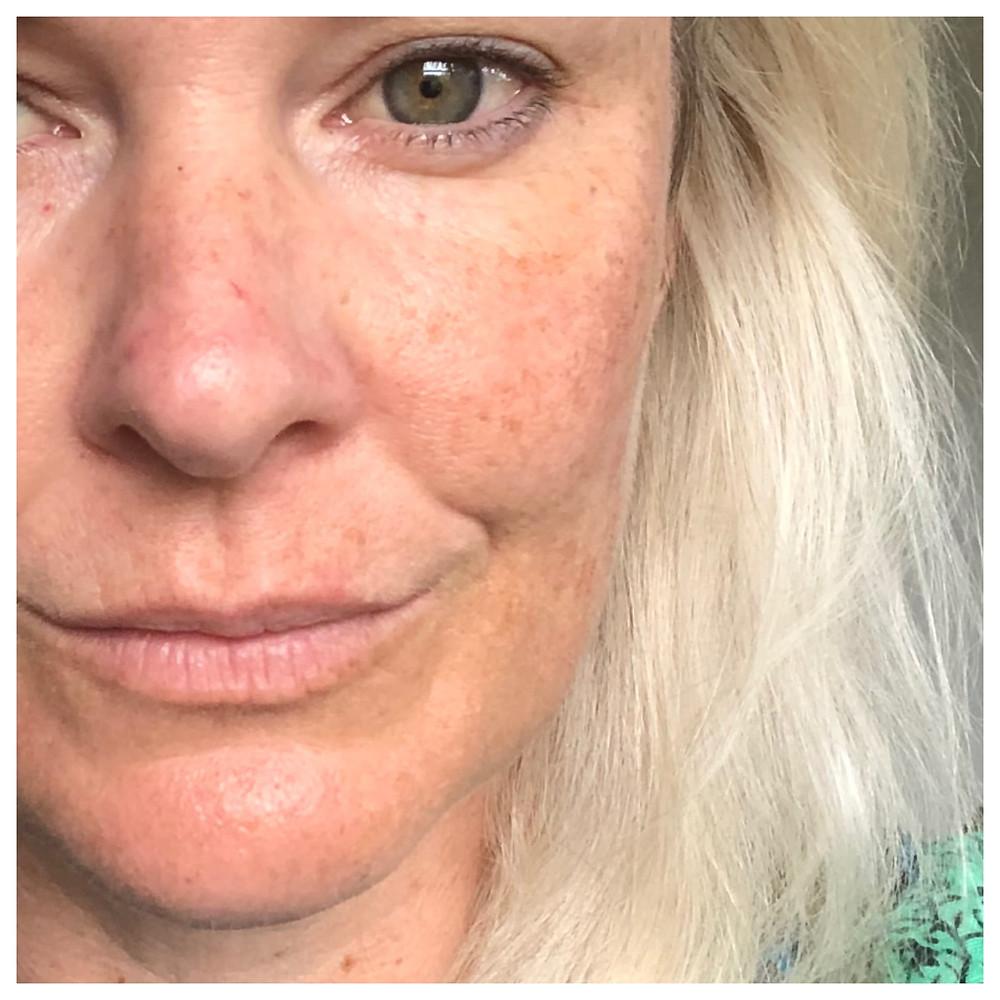 mature skin woman