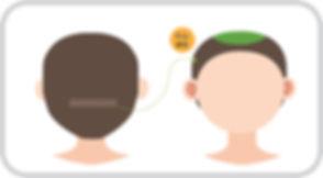 비절개 일러스트(정수리).jpg