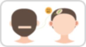 절개 일러스트(흉터).jpg