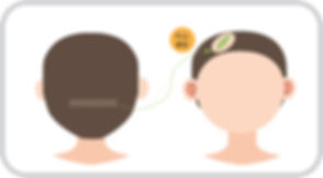 비절개 일러스트(흉터).jpg