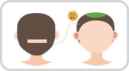 절개 일러스트(정수리).jpg