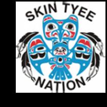 Skin Tyee.png
