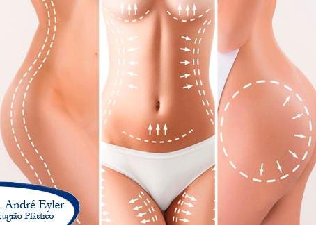 A lipoaspiração é uma técnica cirúrgica que visa a retirada de gordura pelo método da sucção.