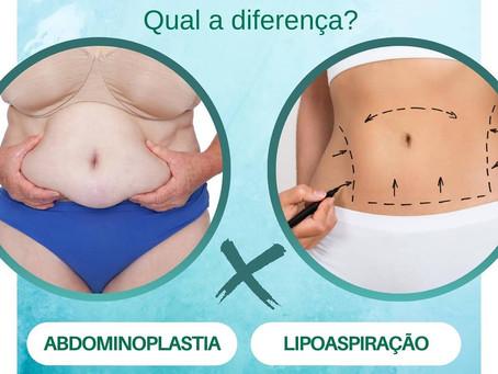 A abdominoplastia elimina gordura e parte da flacidez cutânea e a lipoaspiração realiza a remoção