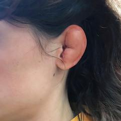 Cauliflower Ear Prosthetic - Brews Brothers