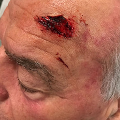 Forehead Wound on Ray Wise - Today's Special
