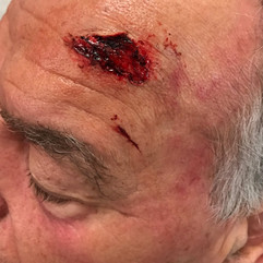 Head Wound on Ray Wise - Today's Special