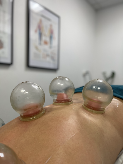 Cupping.heic
