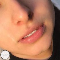 Lip Blush Before.jpg