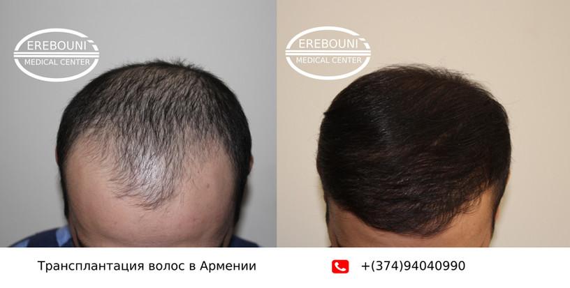 hair transplant in Armenia