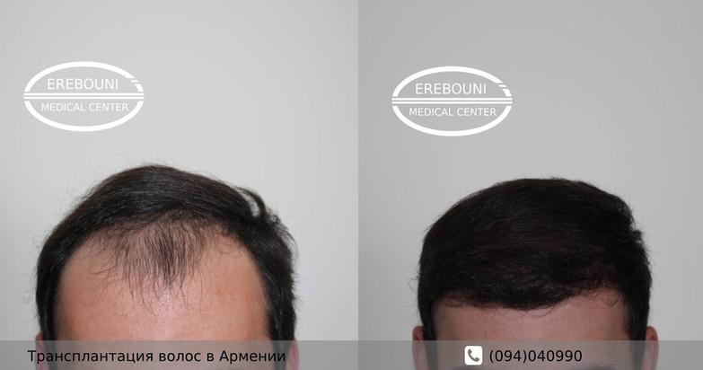 մազերի տրանսպլանտացիա