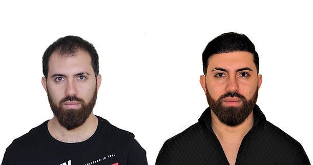 ARMENIA HAIR TRANSPLANT