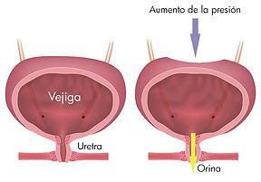 Incontinencia-urinaria-grafico.jpg