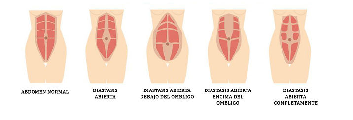tipos diastasis.jpg