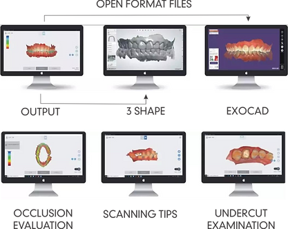 Scanner Runyes Open data Applied to various design software, EXOCAD; 3Shape