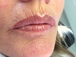 Lippen Permanent Make-up