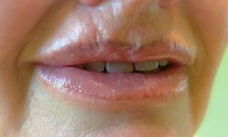 Lippen neu geformt mit PM