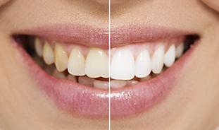 teeth-whitening-ba-image.png