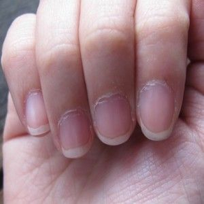 Cuticle care is a must in winters!