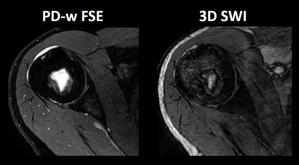 Fig. 5 Susceptibility-weighted Imaging (SWI) outside of the CNS. SWI be very helpful in hemorrhage and calcification detection. Images courtesy of Bac Nguyen.
